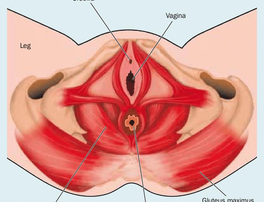 Lantionpohjan lihakset